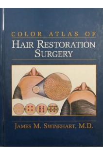 Color Atlas Of  Hair Restoration Surgery. Swinehart J.M.. Appleton & Lange