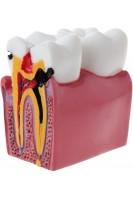 Сравнительная модель здорового и кариозного зубов. 6:1