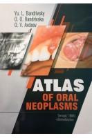 Atlas of oral neoplasms (Атлас новоутворень щелепно-лицевої ділянки). Bandrivsky Yu.L. (Бандрівський Ю.Л.). Укрмедкнига