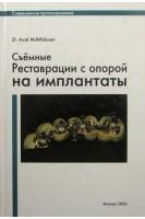 Съёмные реставрации с опорой на имплантаты. Axel Muhlhauser. Москва