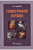 Томография сердца. Терновой С.К.. ГЭОТАР-Медиа