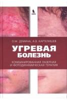 Угревая болезнь. Комбинированная лазерная и фотодинамическая терапия: руководство для врачей. Демина О.М. Картелишев А.В.. Бином