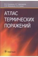 Атлас термических поражений. Сизоненко В.А. Шаповалов К.Г. Мироманов А.М.. ГЭОТАР-Медиа