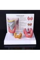 Щитовидная железа. Анатомия и патология. 1:1