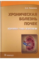 Хроническая болезнь почек. Избранные главы нефрологии. Томилина Н.А.. ГЭОТАР-Медиа